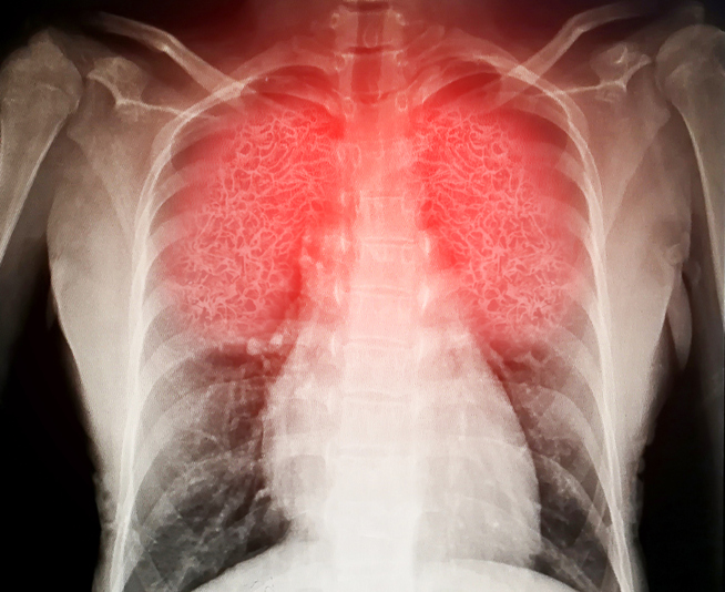 Radiograph of inflamed lungs